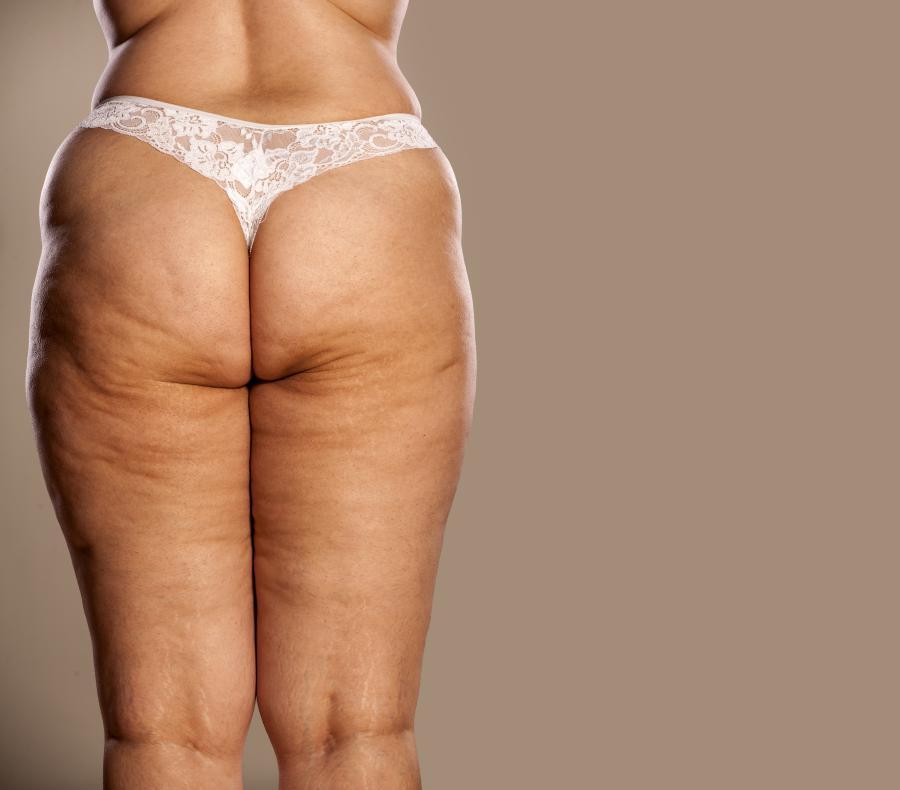 gubitak masnog tkiva nuvo kako možeš smršaviti u nadlakticama