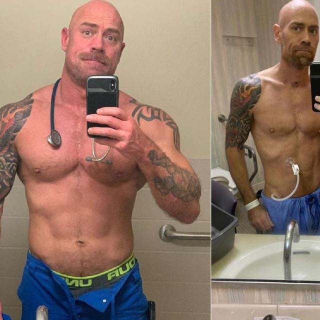 Prije infekcije koronavirusom Mike je imao 86 kg, 'spao' je na 63