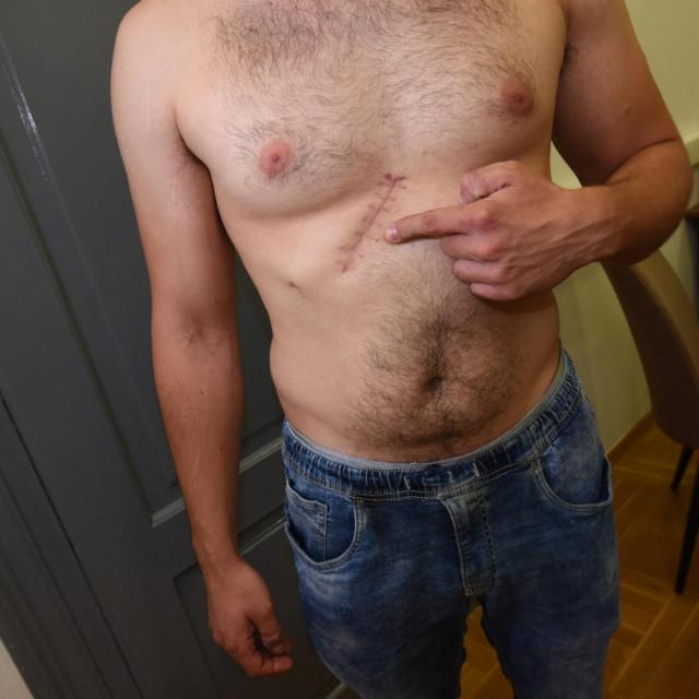 Petrit Krasniči, 27-godišnjak iz Novalje, kojeg je prvog svibnja ispred svog apartmana nožem napao i teško ozlijedio M.Z. (28), pokazuje na tijelu ubodne rane