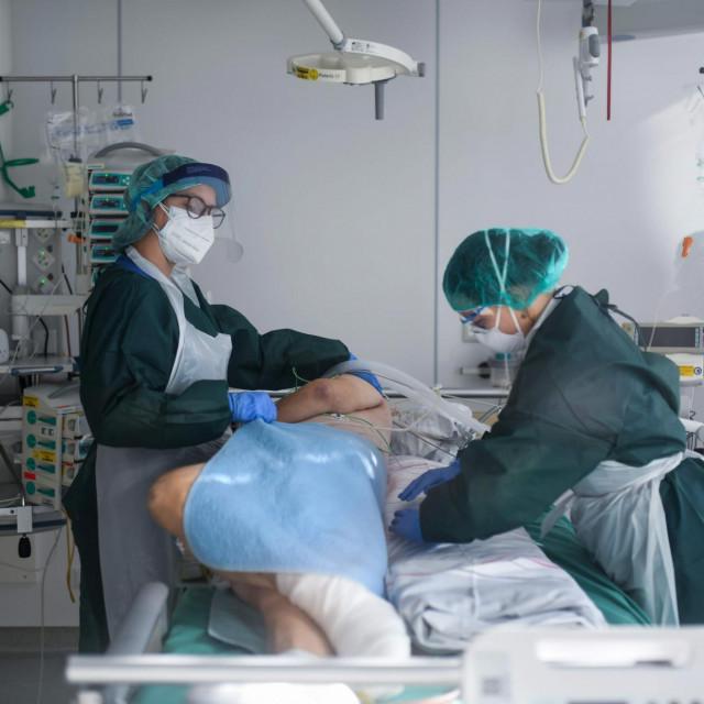 Medicinske sestre uz pacijenta oboljelog od bolesti COVID-19 u intenzivnoj njezi Sveučilišne bolnice u Essenu AFP