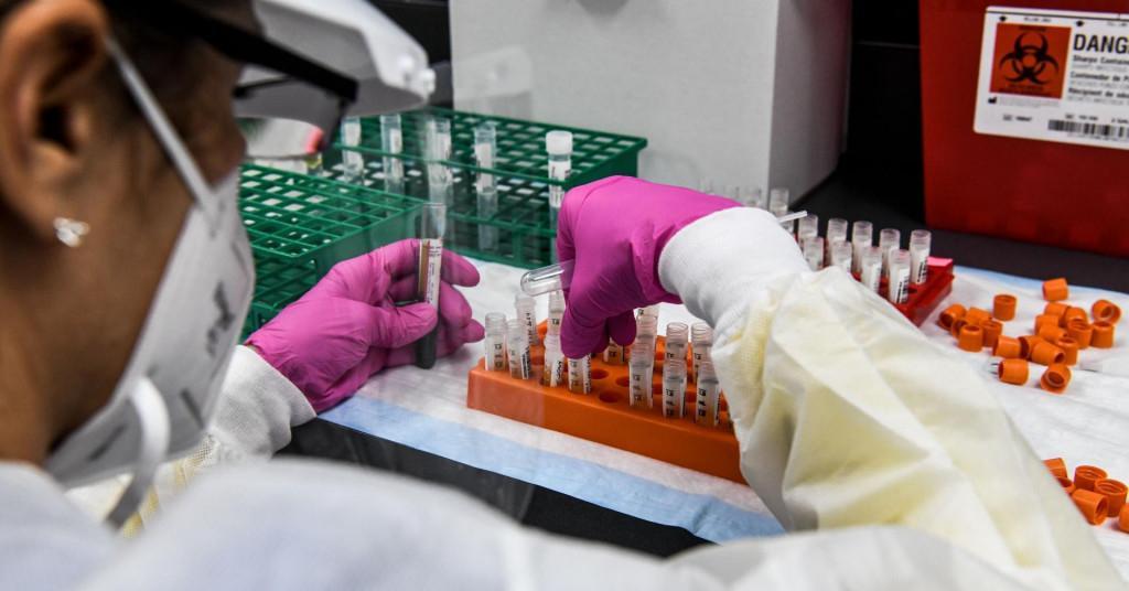 Za početnu opskrbu cjepivom protiv COVID-a, EU po dozi plaća manje od SAD-a