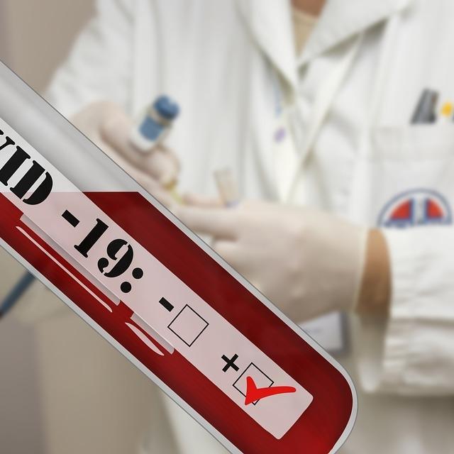 Epidemiolozi preporučuju pridržavanje javnozdravstvenih mjera