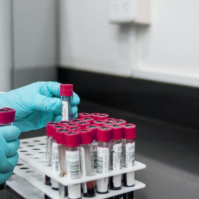 I u 2021. godini nastavlja se pružanje laboratorijskih usluga primarne razine zdravstvene zaštite u Mokošici
