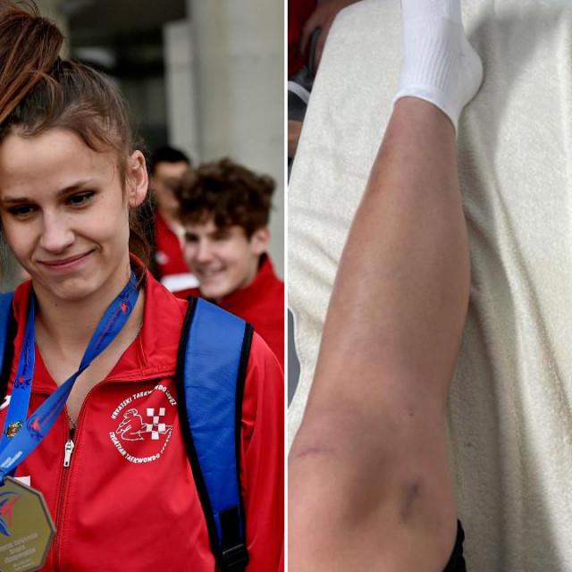 Matea Jelić europska je prvakinja u taekwondou, a objavom na instagramu je pokazala kako je put do trona bio i više nego težak