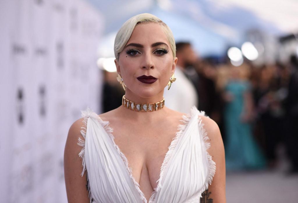 Jennifer McBride (50) je rekla da ih je pronašla na ulici i stupila u kontakt s Lady Gagom koja je preko medija obećala 500.000 dolara nagrade