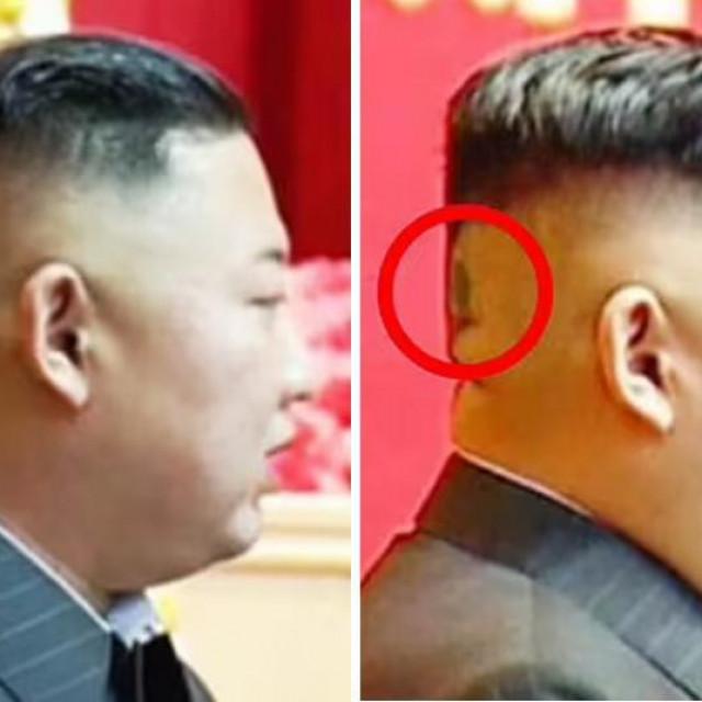 tamna mrlja, ponekad prekrivena velikim flasterom, na stražnjoj strani glave Kim Jong Una potaknula je spekulacija o njegovu narušenom zdravlju